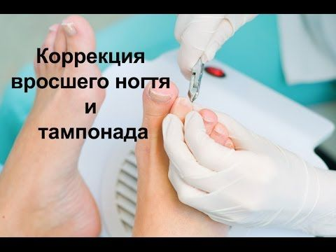 Коррекция вросшего ногтя и тампонада / Correction of ingrown nail and ta...