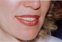 """Упражнение """"Улыбка"""" от калифорнийских стоматологов"""