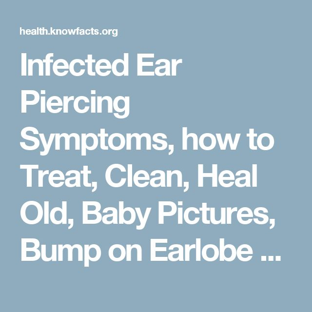 Infected Ear Piercing Symptoms, how to Treat, Clean, Heal Old, Baby Pictures, Bump on Earlobe & New Ear Piercing Infection