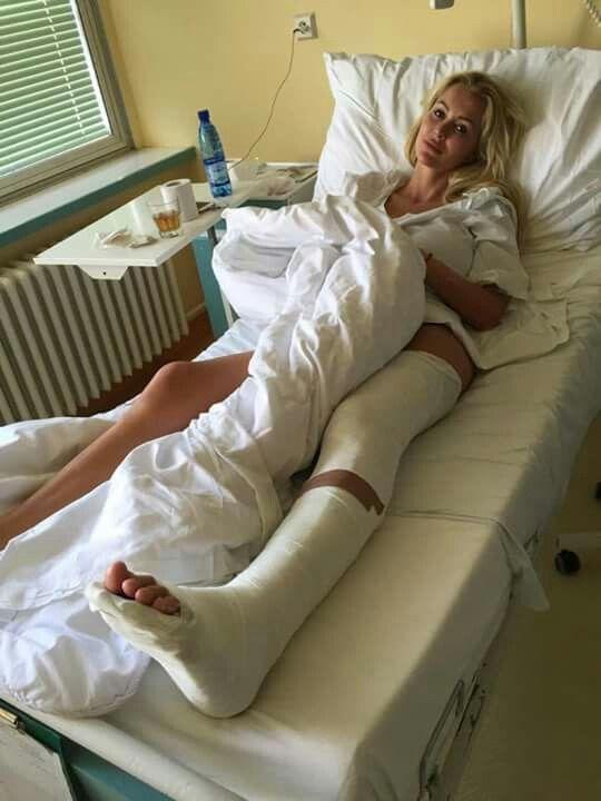 Leg cast fetish gesso gimpsexgirls wearing a leg cast free xnxx pics porn galeries