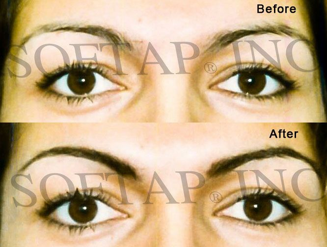 permanent makeup brows forward softap permanent makeup brows jordynn ...
