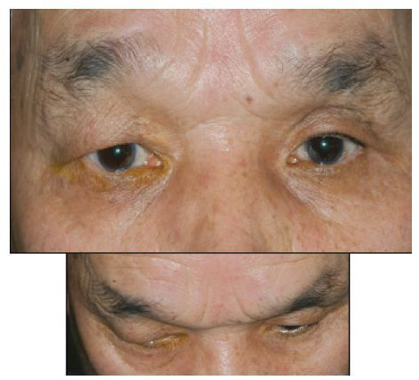 Figure 5 Deepening of the upper eyelid sulcus in a patient treated with travoprost in the left eye.