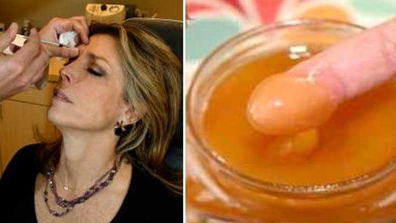 Con Estos 2 ingrediente en polvo olvídate del Botox y elimina todas las arrugas con esta mascarilla con nunca antes lo imaginaste.