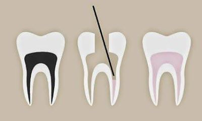 This is a simple 3 tooth diagram of a root canal, also known as endodontic therapy. The first tooth shown in black is the infected pulp tissue which contains arteries, veins and nerves. The second tooth shows the infected pulp tissue being debrided and cleaned. The third tooth shows the cleaned area being obturated, filled in with pink gutta percha.