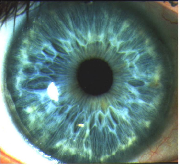 Google Image Result for http://dlfiris.files.wordpress.com/2011/03/about-iris-recognition-1.jpg