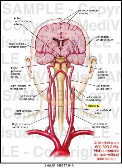 Arteries of head/brain & technically upper extremities.... (you can see circle of Willis here)