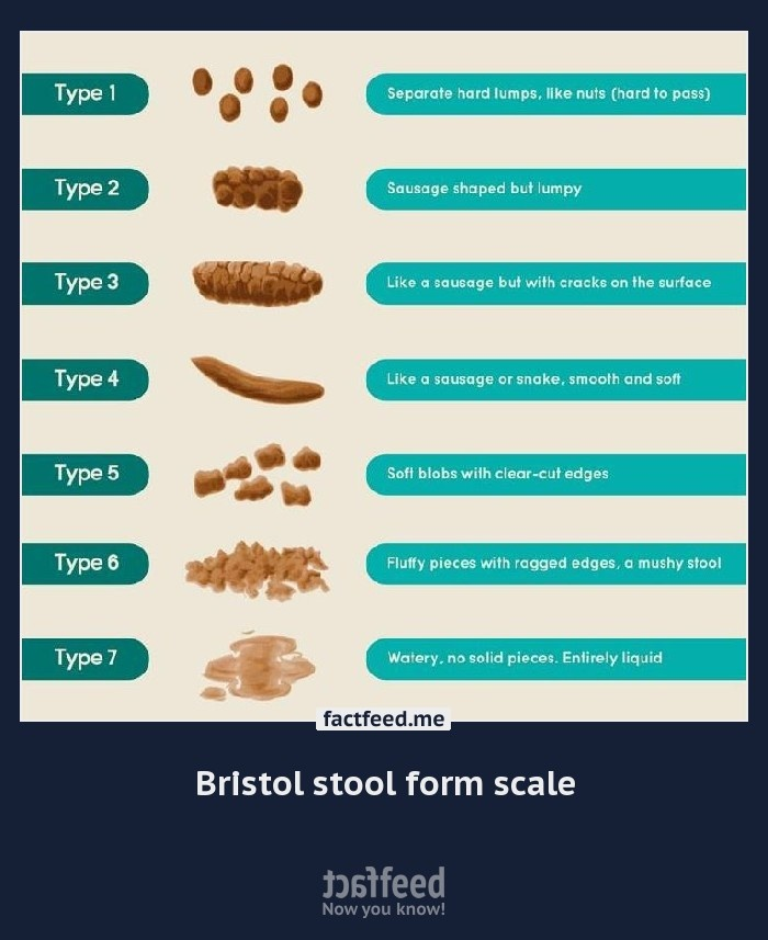 Best 25+ Bristol stool scale ideas on Pinterest Poo chart, Color - stool color chart