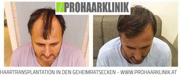 Haartransplantation Deutschland
