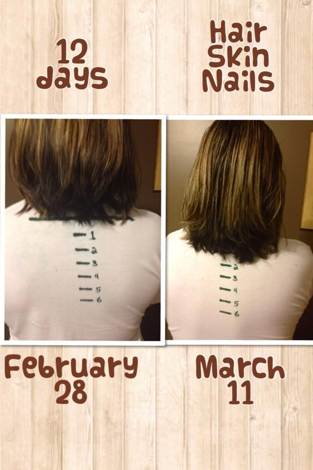 Longer Stronger Hair And Nails
