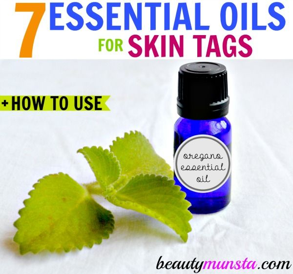 My sister got a small skin tag just above her cheekbone..In this post, I'll be concentrating on the best essential oils for skin tags in particular: