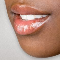 15 best Cold Sores In The Mouth images on Pinterest | Cold sore ...