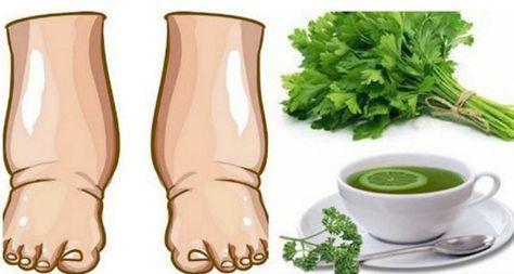Ţi se umflă picioarele? Iată un remediu bun pentru picioarele umflate