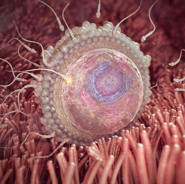 Kelainan sperma ada 4 macam:: 1. Azzospermia yaitu kondisi dimana tidak ada nya sel sperma.. 2. Asthenospermia yaitu kondisi pergerakan sperma kurang lincah.. 3. Oligosperma yaitu kondisi dimana volume sperma kurang dari 20jt per ejakulasi.. 4. 'Terthospermia yaitu kondisi dimana anatomi sperma banyak yang abnormal. Konsultasi��Silahkan hubungi:  BBM D6D0AED1 Tlp/sms/wa:  085748608345  #muapekalongan #riaspengantinpekalongan #atiekweddingorganizer #karanganyarkajen #pekalongan…
