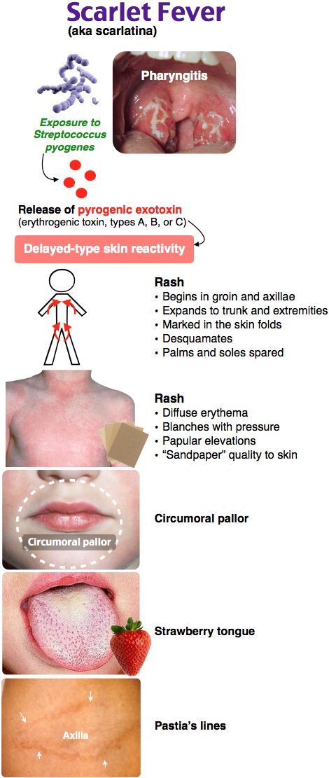 Scarlet Fever rash ped Rosh Review