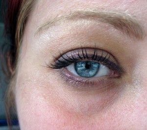 How to get rid of Dark Circles under Eyes Fast