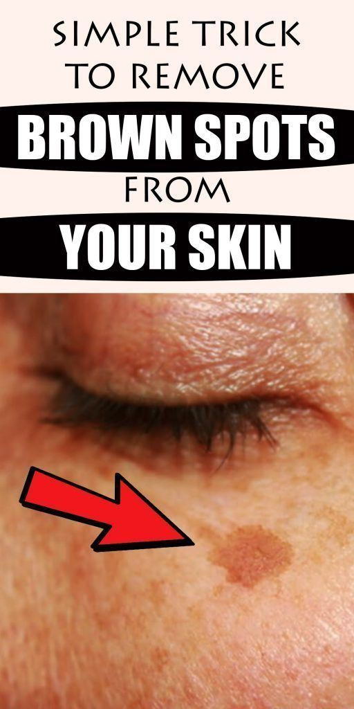 Simple Trick to Remove Brown Spots from Your Skin – ValorDaily
