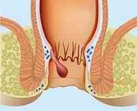 Aprende qué son, cuáles son sus principales síntomas y cómo combatir las hemorroides internas (sangrantes) de manera efectiva. Lee más: http://saludtotal.net/como-combatir-las-hemorroides/