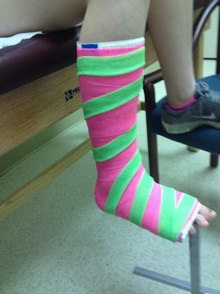 Short leg cast with stripes Fiberglass Pinterest