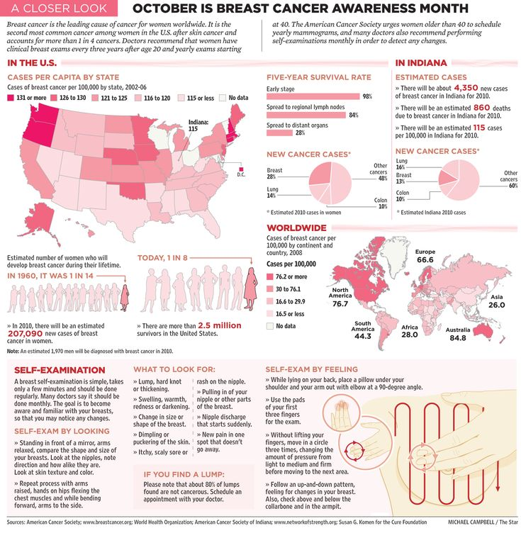 16 best Stroke Infographics images on Pinterest Diffu0027rent - mammography resume