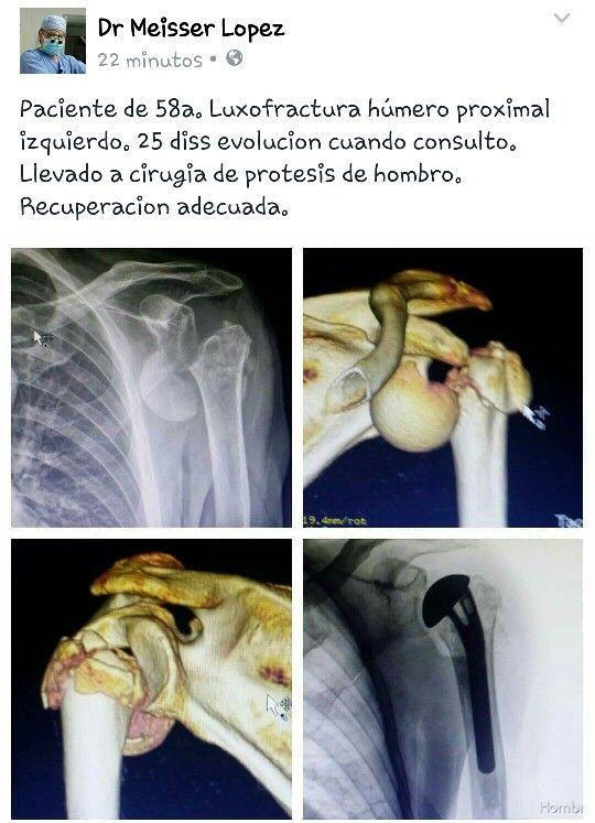 Protesis de hombro en paciente  de 58a con luxofractura de humero proximal izquierdo.