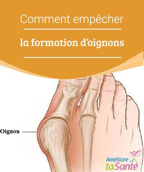 Comment empêcher la formation d'oignons   Les oignons de pieds sont une malformation douloureuse et fréquente. Ils sont dus à nos chaussures, mais il arrive qu'ils soient héréditaires.