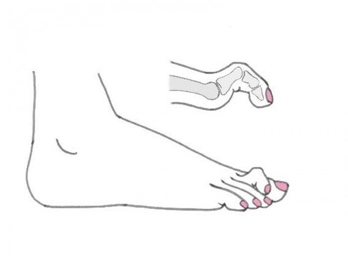 Dito a martello - Il dito a martello è una patologia che colpisce il piede e a volte anche la mano. Si manifesta attraverso una deformità delle dita del piede..