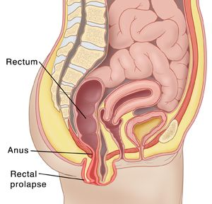prolapse rectum Treatment