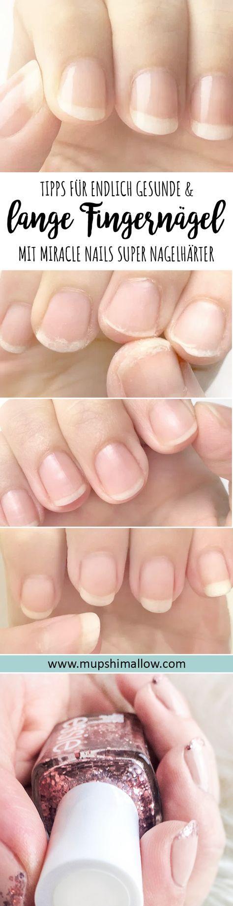 Ganz lange plagen mich schon brüchige und ungesunde Fingernägel die ganz schnell splittern, einreißen und einfach nicht lang wachsen. Kein Nagelhärter hat mir wirklich geholfen. Dank des Miracle Nails Super Nagelhärter habe ich nun endlich feste, lange und gesunde Fingernägel bekommen. Klickt hier für meine Produkt Review und probiert es selber aus!