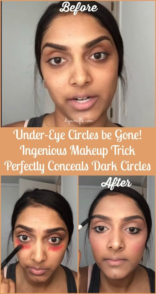 Under-Eye Circles be Gone! Ingenious Makeup Trick Perfectly Conceals Dark Circles...