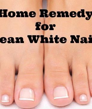 Awesome Home Remedy that REALLY WORKS! 2.5 Tbsp Baking Soda + 1 Tbsp Peroxide. Leave paste on & under nails for 3 mins once a week. by mrsnutty