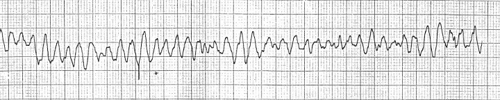 Ventricular fabrilation - no identifiable p waves- QRS complex -or T waves