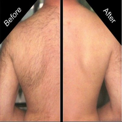 Get Rid Of Back Hair Permanently