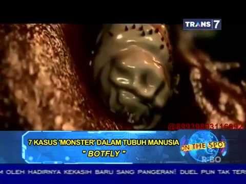 On The Spot - 7 Kasus 'Monster' Dalam Tubuh Manusia