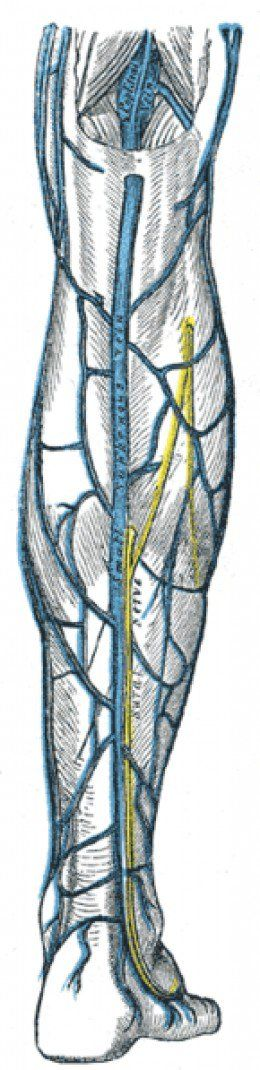 The small saphenous vein, on the lower back calf of the leg is also commonly treated with Endovenous Laser treatment.