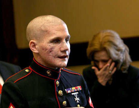 The beautiful face of courage: Lance Cpl. William Kyle Carpenter USMC    Carpenter, 21, of Gilbert lost the eye, most of his teeth and use of his right arm from a grenade blast Nov. 21 near Marjah, Helmand Province, Afghanistan.    Friends and family say he threw himself in front of the grenade to protect his best friend in Afghanistan, Cpl. Nick Eufrazio. What a HERO!!