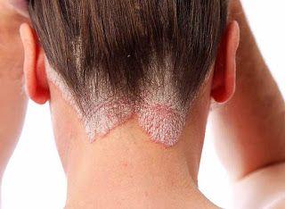 Como cuidar una piel con psoriasis