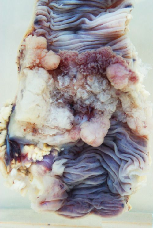 'Your corpse is beautiful XXXXIV', by Mia-Jane Harris. Part of a series in which she takes close-up photographs of medical specimens of human cadavers to reveal beauty in death.