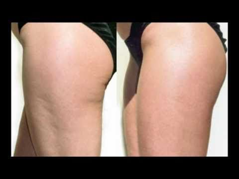 Amazing Cellulite Cure - you will need: to drink 1cup warm lemon water every morning, Cellulite oil - fushi  or http://www.losecellulitenow.net/does-coconut-oil-reduce-cellulite-find-out-5-effective-ways/ , a dry body brush and Du Wop revolotion cream or body bling bronzer.