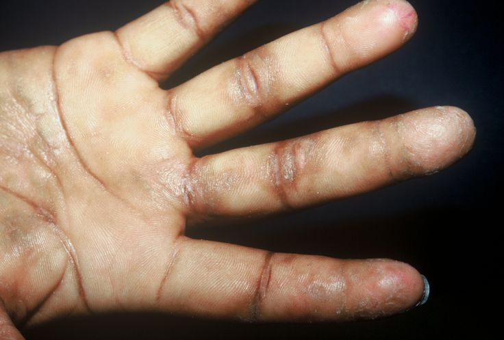 ... About Eczema on Pinterest | Surf, Eczema on babies and Eczema remedies