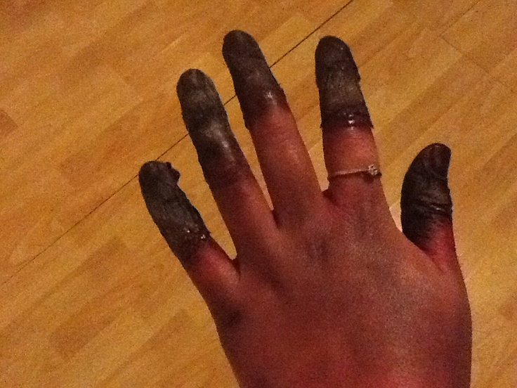 Gangrenous fingers | Graphic diseases and conditions ...