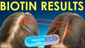 hairlosstreatmentsreview.net/regrowth-biotin-shampoo/ �  Regrowth biotin shampoo