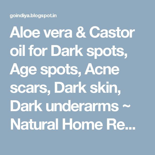 Aloe vera & Castor oil for Dark spots, Age spots, Acne scars, Dark skin, Dark underarms ~ Natural Home Remedies. Simple and Effective