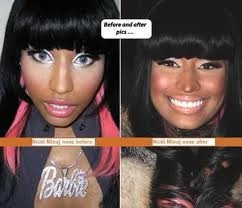 Nicki Minaj has recently claimed that she has not had any plastic surgery on her face.  The photos tell no lies!