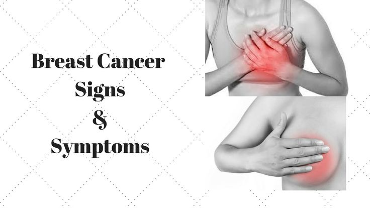Breast Cancer Signs & Symptoms