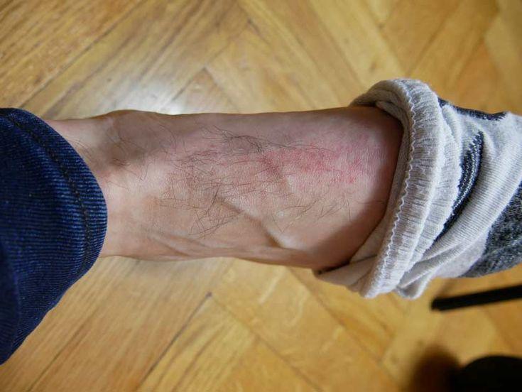 epilateur lumiere pulsee kemei km 6812 rougeur sur le pied