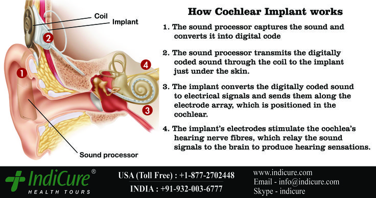 Do you know How Cochlear Implant works? Here's a picture that shall explains the working of Cochlear Implant. Done at most affordable cost in India with IndiCure.