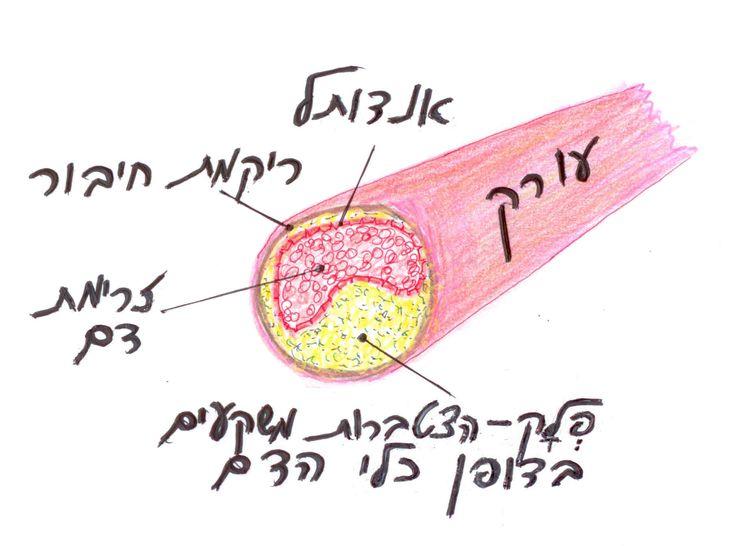 תהליך טרשת עורקים: עורק פגום, חסר גמישות וחסום בחלקו על ידי פלאק טרשתי