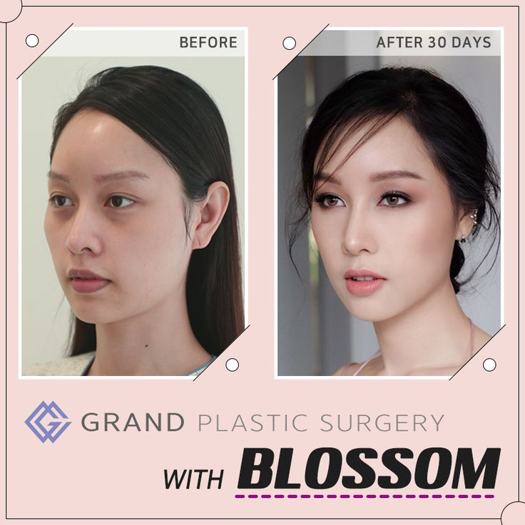 Let's go through Blossom's record of experience with Grand ...