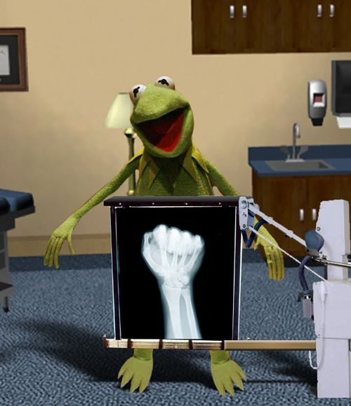 """Kermit  """"the inside story""""Truths Hurts, Rad Tech, Childhood Memories, Funny Pictures, Xray, Funny Stuff, The Muppets, Tech Humor, X Ray"""