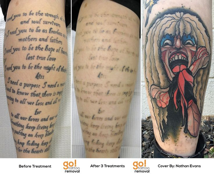 96 best tattoo removal to tattoo cover up images on for How to prevent tattoo fading